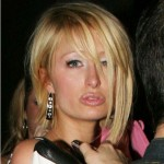 paris-hilton-fake-lips